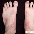 Những họ nhà nấm nào thường rình rập tấn công bàn chân